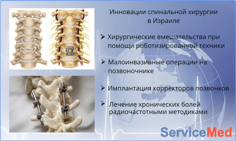Инновации спинальной хирургии Израиля