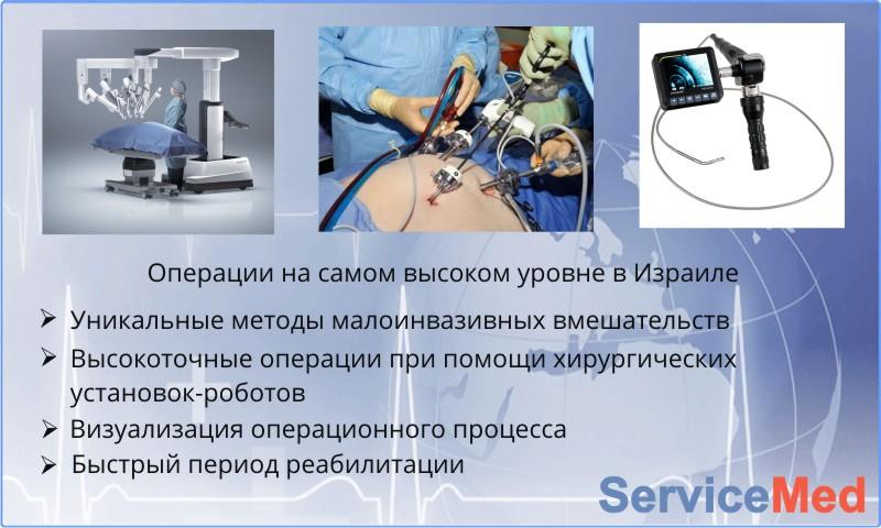 Характеристики хирургии Израиля