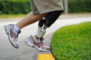 Протезирование ноги в Израиле: Biom T2 System