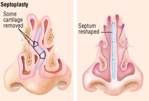 Лечение искривления носовой перегородки в Израиле