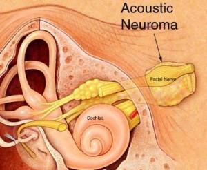 Радиохирургия невриномы слухового нерва в Израиле
