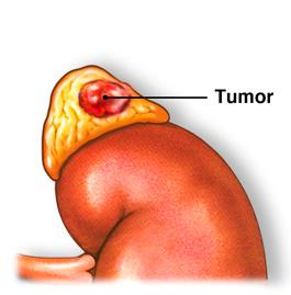 Удаление опухоли надпочечника в Израиле
