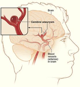Лечение аневризмы в Израиле
