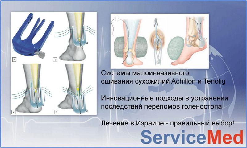 Лечение травм голеностопа в Израиле