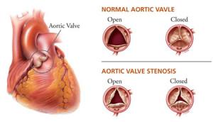 Лечение стеноза аорты в Израиле