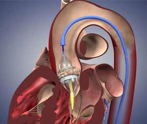 Операции на сердце в Израиле: замена клапана
