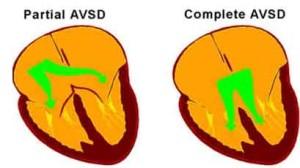 Лечение дефекта предсердно-желудочковой перегородки в Израиле