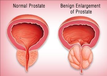 Рак предстательной железы 8