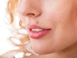 Лечение доброкачественных опухолей кожи в Израиле