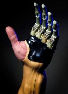 Протезирование верхних конечностей в Израиле: рука