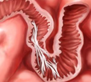 Лечение непроходимости кишечника в Израиле