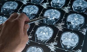Лечение менингиомы головного мозга в Израиле