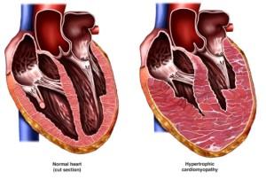 Лечение кардиомиопатии в Израиле