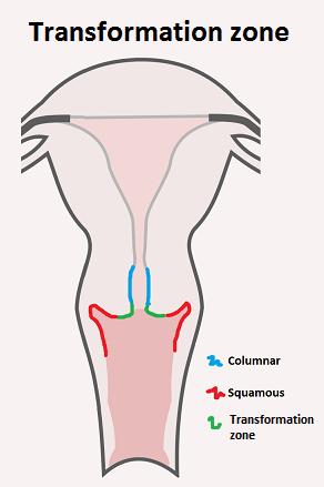 Лечение эрозии шейки матки в