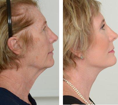 Пластическая хирургия шеи пластическая хирургия на к