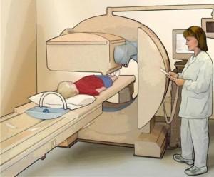 Лечение саркомы костей у детей в Израиле