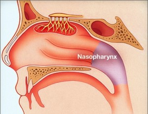 Лечение рака носоглотки у детей в Израиле