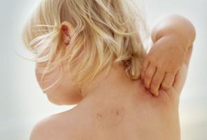 Лечение рака кожи у детей в Израиле