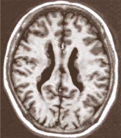Лечение порэнцефалической кисты головного мозга в Израиле