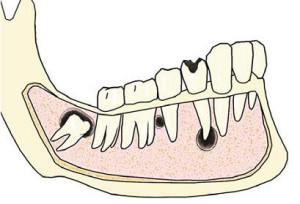 Лечение эпителиальных кист челюсти в Израиле