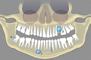 Лечение радикулярной кисты челюсти в Израиле