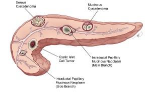 Лечение неопластической кисты поджелудочной железы в Израиле