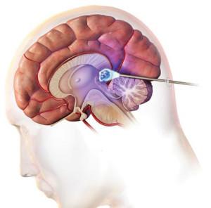 Лечение пинеальной кисты головного мозга в Израиле