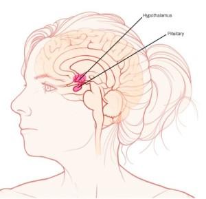 Лечение кисты гипофиза головного мозга в Израиле