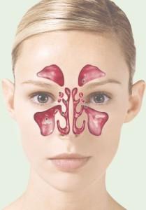 Лечение кисты придаточных пазух носа в Израиле