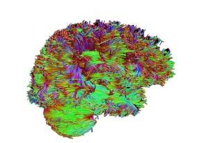 Лечение злокачественных опухолей мозга в Израиле: диффузионная тензорная визуализация