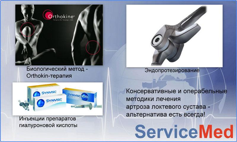 Лечение артроза (остеоартроза) локтевого сустава в Израиле