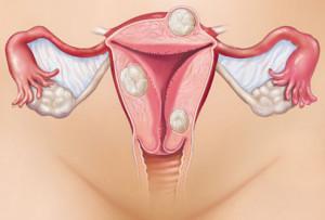 Лечение эндометриоза в Израиле