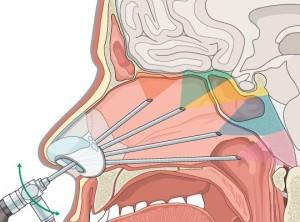 Удаление опухолей основания черепа в Израиле: эндоскопическая хирургия