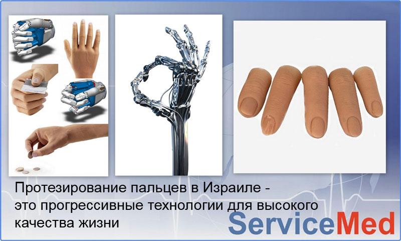 Протезы пальцев в Израиле