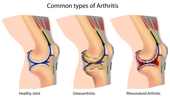 Ослабление коленного сустава реферат по физкультуре суставная гимнастика