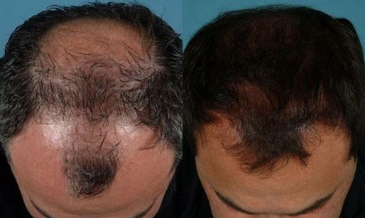 Пересадка волос казахстан цена