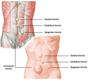 Лечение надпузырной грыжи в Израиле