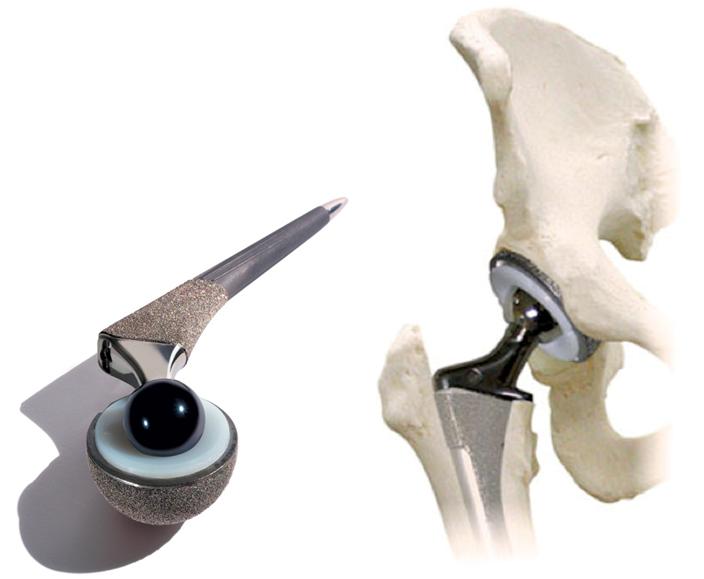Разрушение тазобедренного сустава лечение без операции