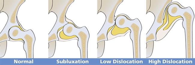 Дисплазия отзовы тазобедреного сустава щелкают суставы у той терьера