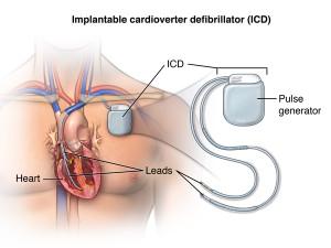 Имплантация кардиовертеров-дефибрилляторов в Израиле