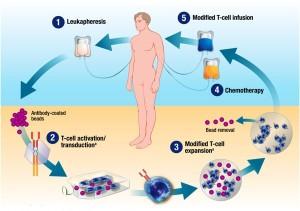 CAR-T терапия при лечении лейкемии и лимфомы в Израиле