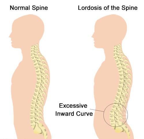 Упражнения для спины грудная клетка осанка