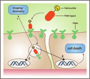 Инновационная терапия рака простаты с помощью лютеция-177
