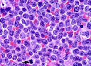 Лечение лимфомы из клеток мантийной зоны в Израиле