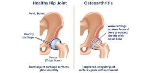 Лечение артроза (остеоартроза) тазобедренного сустава в Израиле