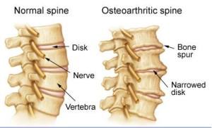 Лечение остеоартрита в Израиле