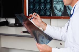 Лечение остеомиелосклероза в Израиле