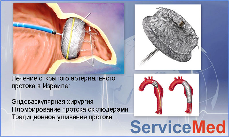 Лечение открытого артериального протока в Израиле