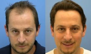Лечение потери волос и облысения в Израиле