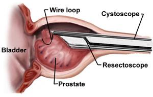 Узи предстательной железы по типу хронического простатита